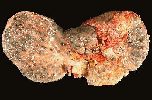 Пример формулировки диагноза цирроза печени thumbnail