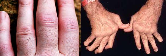 артрит проксимальных межфаланговых суставов, деформация рук у пациента с ревматоидным артритом