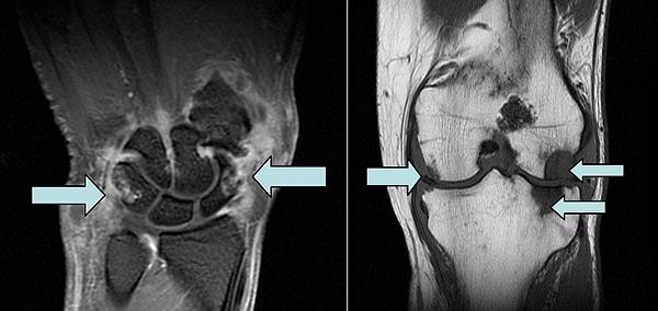 Магнитнорезонансная томография суставов запястья, коленного сустава