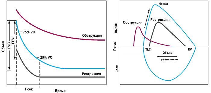 Спирография, поток-объем