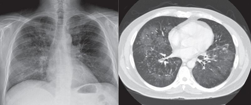 Рентгенограмма грудной клетки при пневмоцистной пневмонии