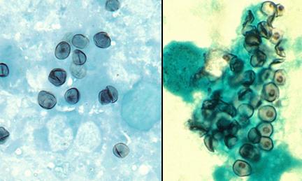Pneumocystis jiroveci