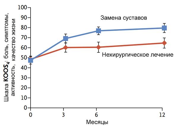 Сравнение замены суставов с нехирургическим лечением