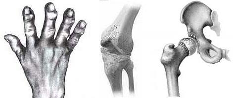 остеоартоз