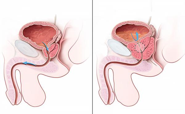 Медицина рак предстательной железы